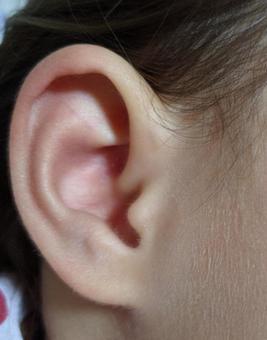 兒童的耳朵