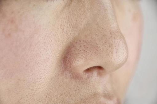 여자의 코 주위 모공