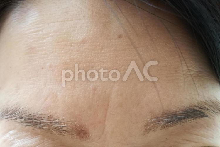 眉間のシワ 眉毛の白髪 の写真
