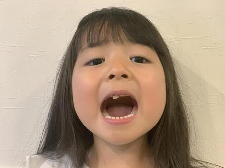 女孩的牙齒快脫落
