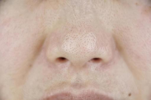 여자의 코 주위 정면