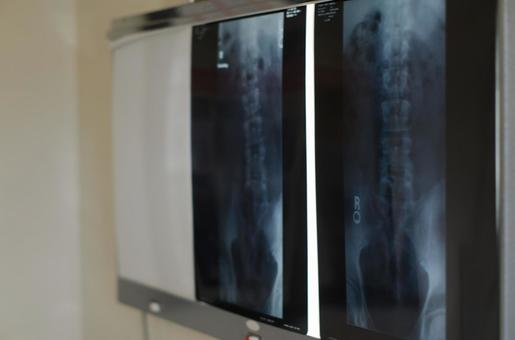 방사선 사진
