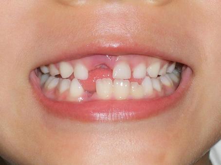 牙齿生长的时间