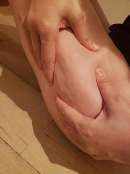 Thigh cellulite