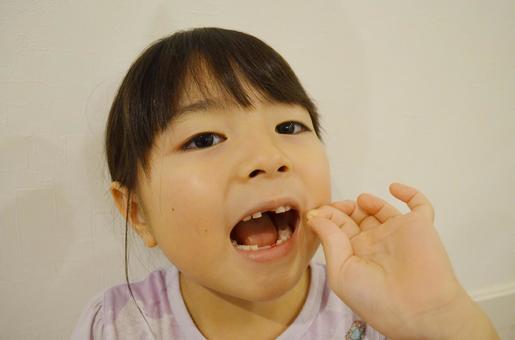 缺牙的女孩