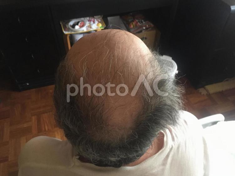 髪の毛 の写真