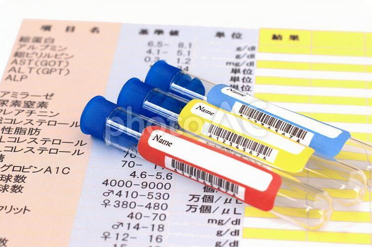 血液検査の写真