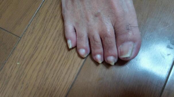 Old man's foot